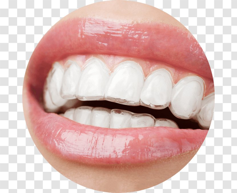 Clear Aligners Dental Braces Orthodontics Dentistry Transparent Png