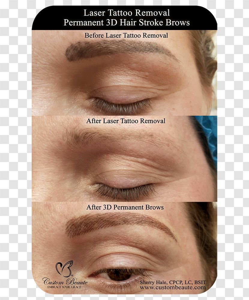 Eyebrow Tattoo Removal Permanent Makeup